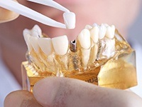 Model smile with implant retained dental crown