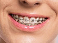 Closeup smile with bracket and wire braces